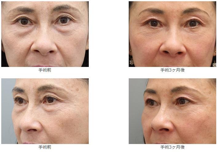 水谷和则去眼袋和黑眼圈55岁案例
